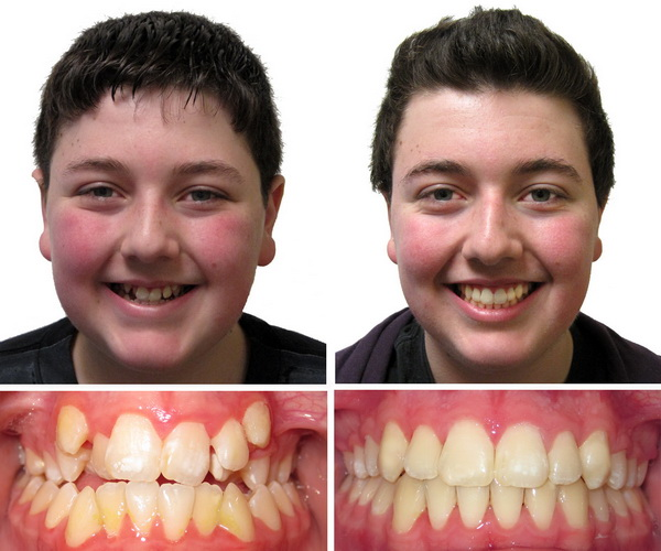 how to fix flared teeth after braces