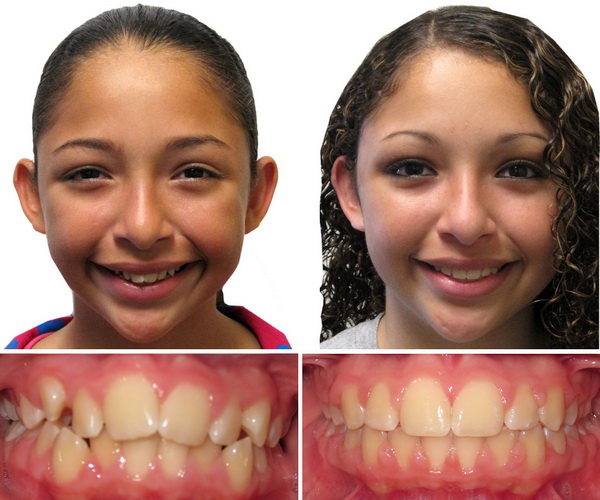 Chatte before and after adult braces Makes glad